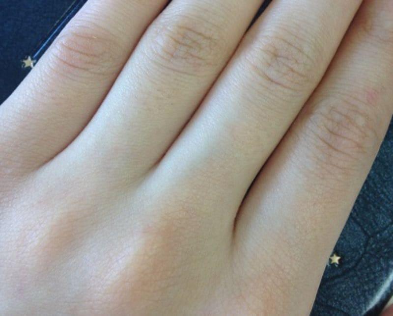 男性の本音「胸や指」のムダ毛